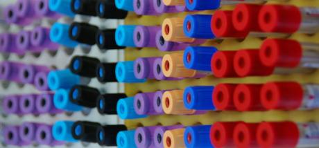 Analisi di laboratorio, i referti si ritirano anche in farmacia