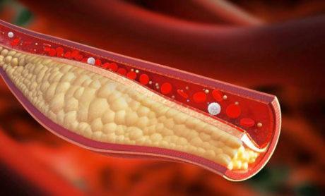 Il Colesterolo: facciamo un po' di chiarezza
