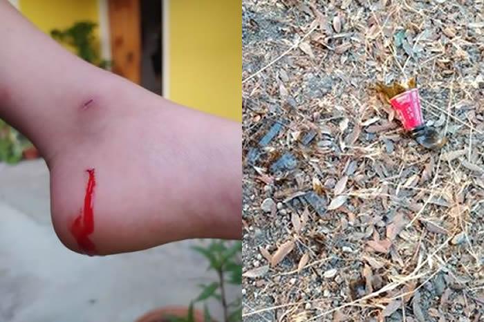 Piazza Salvo D'Acquisto, bambino ferito dai cocci di vetro: quando il degrado diventa pericoloso